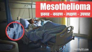 Mesothelioma in Hindi